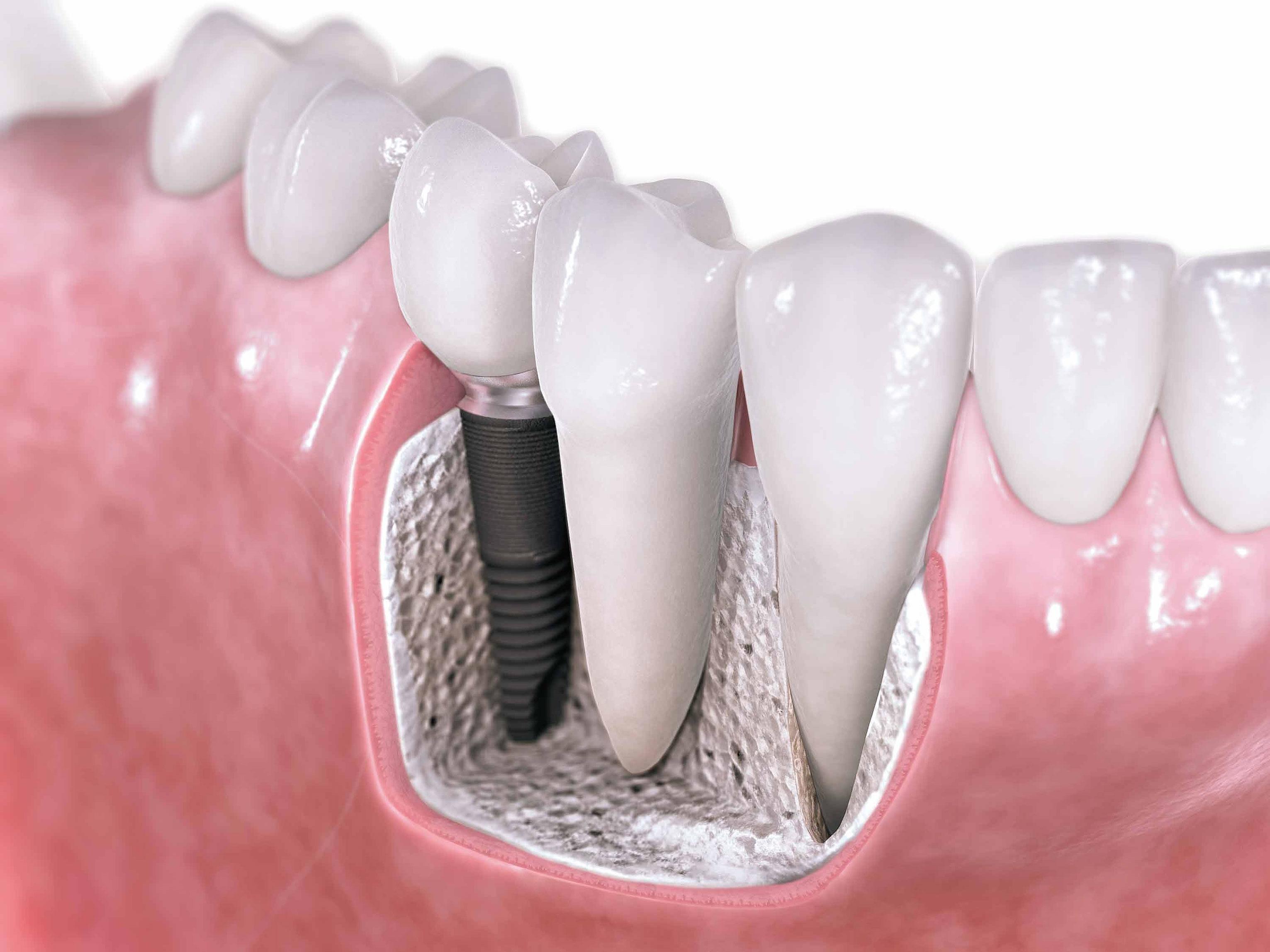 Implantología Bucomaxilofacial
